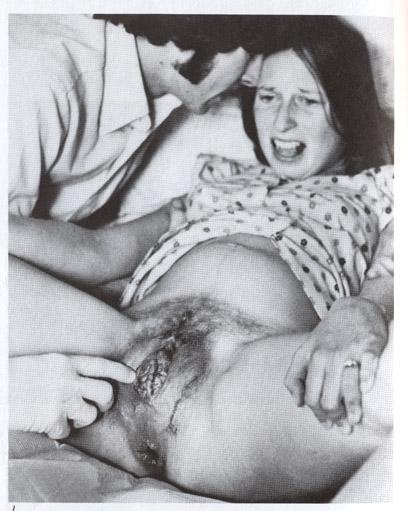 Vaginal Delivery